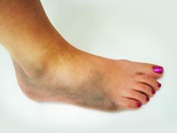 Оформить больничный лист при получении травмы: как правильно это делается?